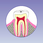 虫歯の初期段階(C1)
