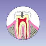 虫歯の中期段階(C2)