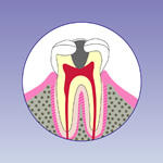 虫歯の後期段階(C3)
