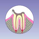 虫歯の末期段階(C4)