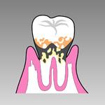 歯周病(中期)