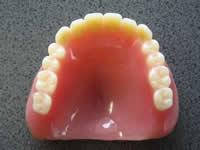 1)入れ歯の製作実績1500件以上のスペシャリストが担当します